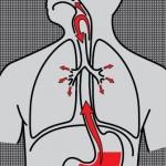 astma i GERB