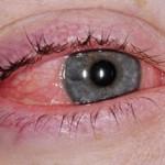 Alergije-oka