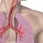 Bronhijalna-astma